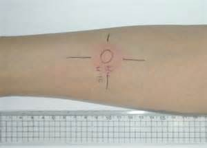 2 step tuberculin skin test picture 7