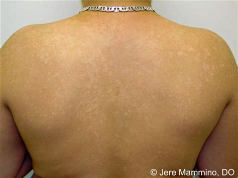 white spots on skin that cause fungi picture 4