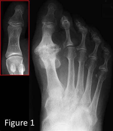 joint pain big toe picture 7