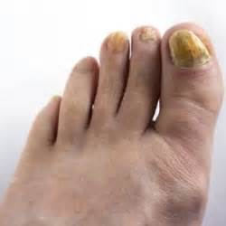 cure for yellow toe nail fungus picture 5