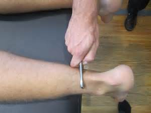 penis releasing of ligaments clinics in north california picture 10