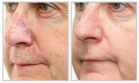 az vein skin rejuvenation picture 15