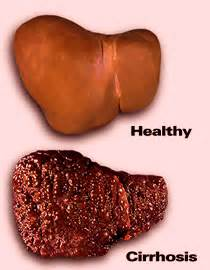 cirrhosis of the liver due to alcohol picture 19