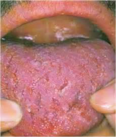 mistaken herpes symptoms picture 6