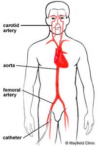 skin boils and artery stents picture 15