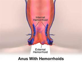 internal hemorrhoids picture 1
