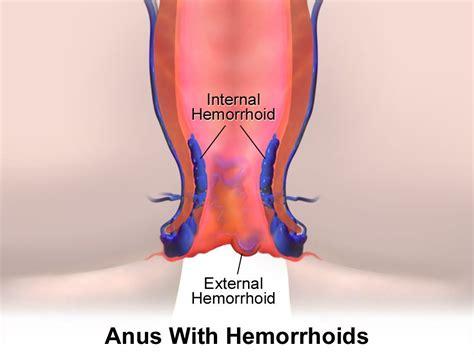 internal hemorrhoids picture 2