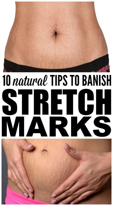 how to remove stretch mark naturally picture 5