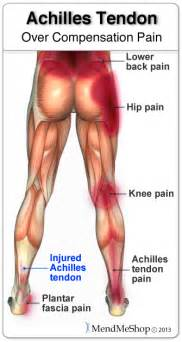severe pain on the side of my calf picture 3