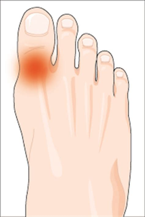 joint pain big toe picture 3