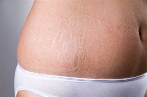 stretch mark removal texas picture 13