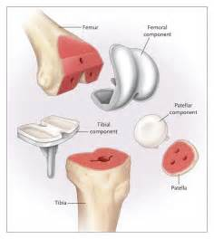knee joint pain remedies picture 11