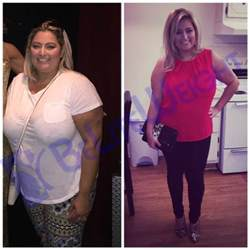 weight loss 6 months after gastric sleeve picture 3