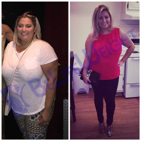new weight loss pill that works like stomach surgery picture 15