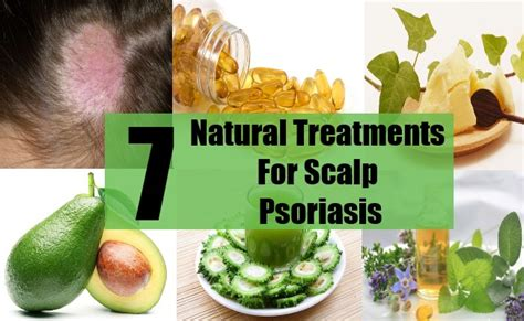 herbal psoriasis remedies picture 3