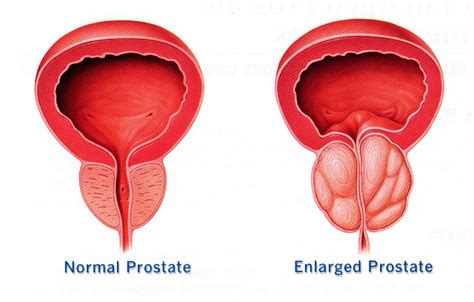 small bladder treatments picture 3