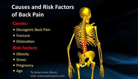 sam e and joint pain picture 13