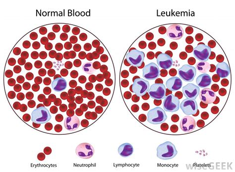 b cell lymphoma symptoms picture 9