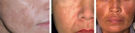 dry skin on legs after menopause picture 2