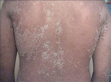lamisil skin rash picture 5