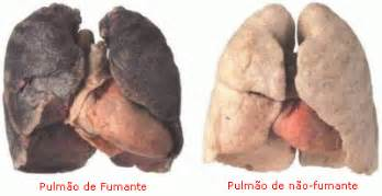causes of colo cancer picture 17