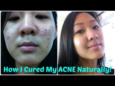 oil cured my acne picture 10