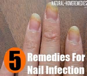 remedies for toenail fungus+ painting toenails picture 8