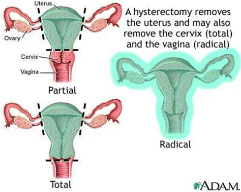 after a hysterectomy aging picture 1