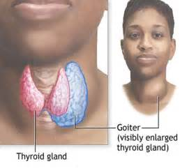 goiter thyroid picture 1
