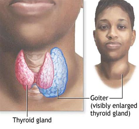 can goiter grow on thyroid hormone picture 1