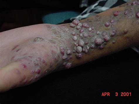 skin lesions of hiv positive patients picture 1