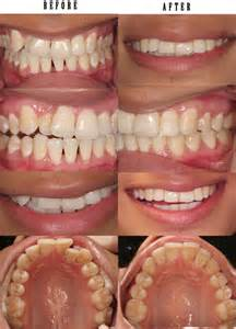 get straight teeth fast picture 13
