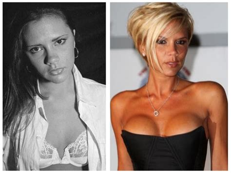who did the breast implants on beshine picture 2