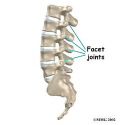 degenerative joint disease of cervical spine picture 18