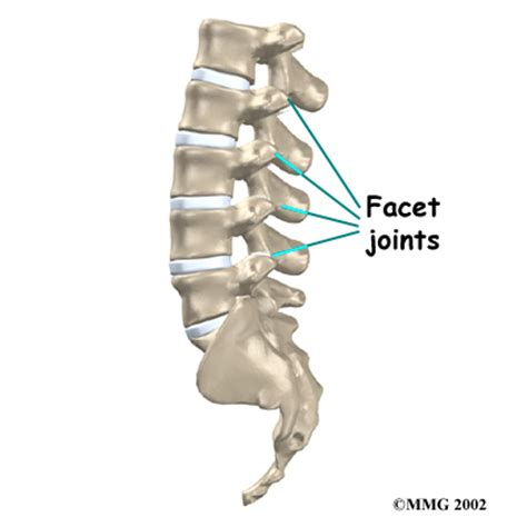 degenrative joint diease in the spine picture 24