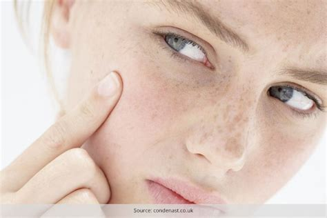 dry skin acne picture 1