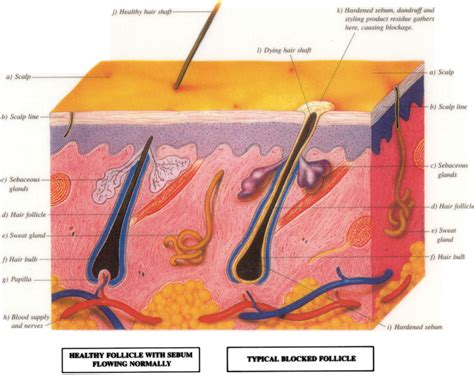 follicle picture 11