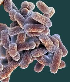 Bacterial e coli picture 2