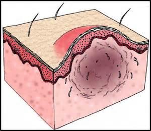 dissolve thyroid nodules picture 7