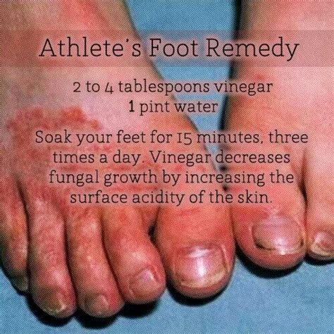 Athlete foot herbal remedy picture 1