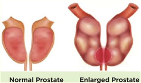 does sex worsen an enlarged prostate picture 10
