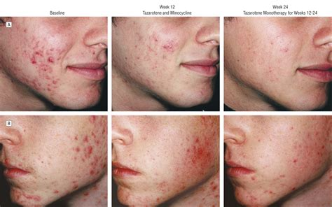 acne treatment comparison picture 2