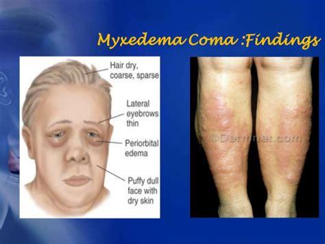 hypothyroidism test picture 9