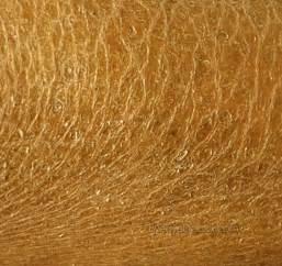 crusty skin spots picture 2