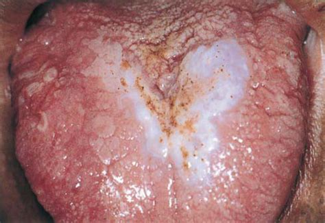 yeast lesion picture 6