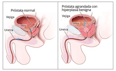 bladder and prostate picture 2
