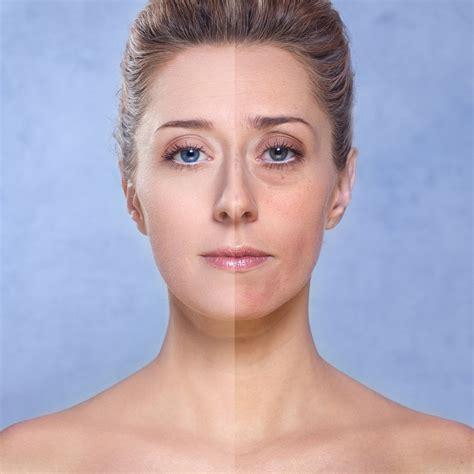dr oz anti aging cream picture 6
