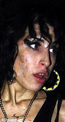 crystal meth and acne picture 1