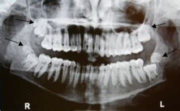 having no molar h picture 9