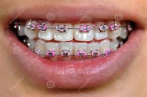 braces picture 18